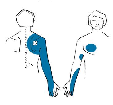 Wellness - Triggerpunkt-Therapie - Susanne Grützmacher